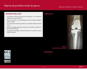 """""""Reprise de prothèse totale de genou"""" icon"""