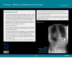Scolioses : définition, classifications, bilan clinique icon
