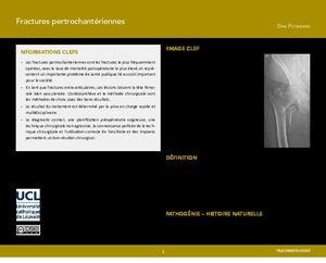 Fractures pertrochantériennes icon