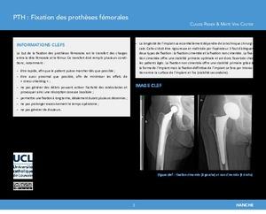 Prothèse totale de hanche (PTH) : Fixation des prothèses fémorales icon