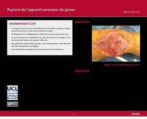 """""""Rupture de l'appareil extenseur du genou Arnaud"""" icon"""
