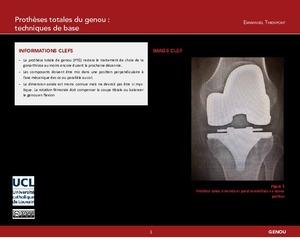 Prothèses totales du genou : techniques de base icon