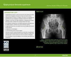 """""""Épiphysiolyse fémorale supérieure"""" icon"""