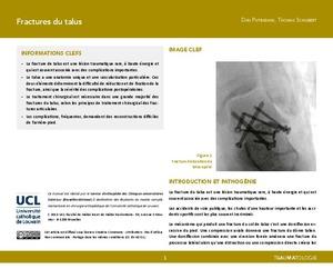 Fractures du talus icon