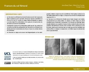Fractures du col fémoral icon