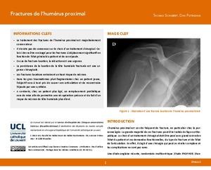 Fractures de l'humérus proximal icon